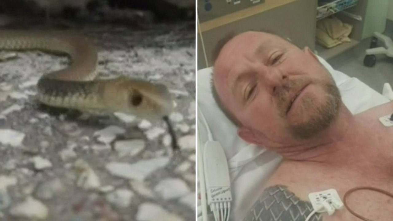 Snake catcher who was bit by eastern brown reveals he's allergic to snakes