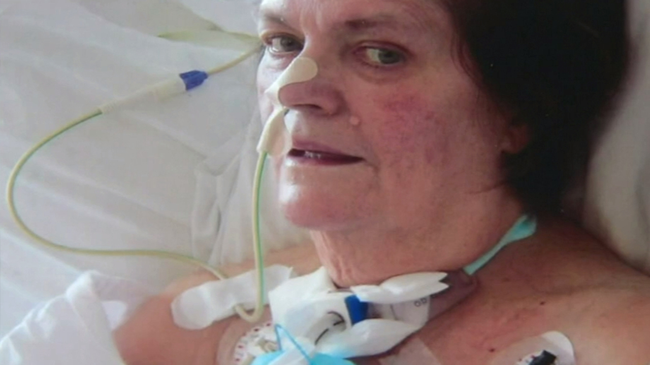 This woman survived coronavirus against the odds