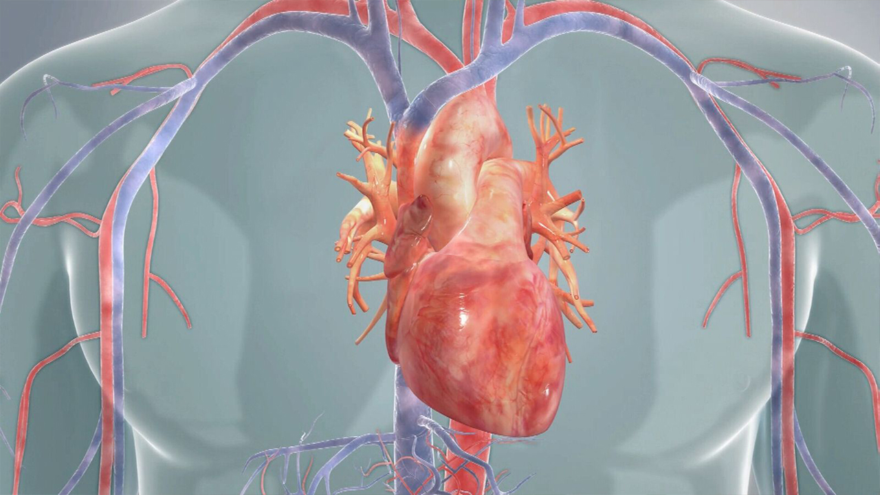 'Game-changer for cardiac disease'