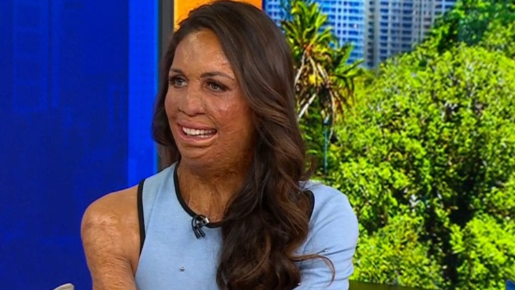 How you could run with Turia Pitt